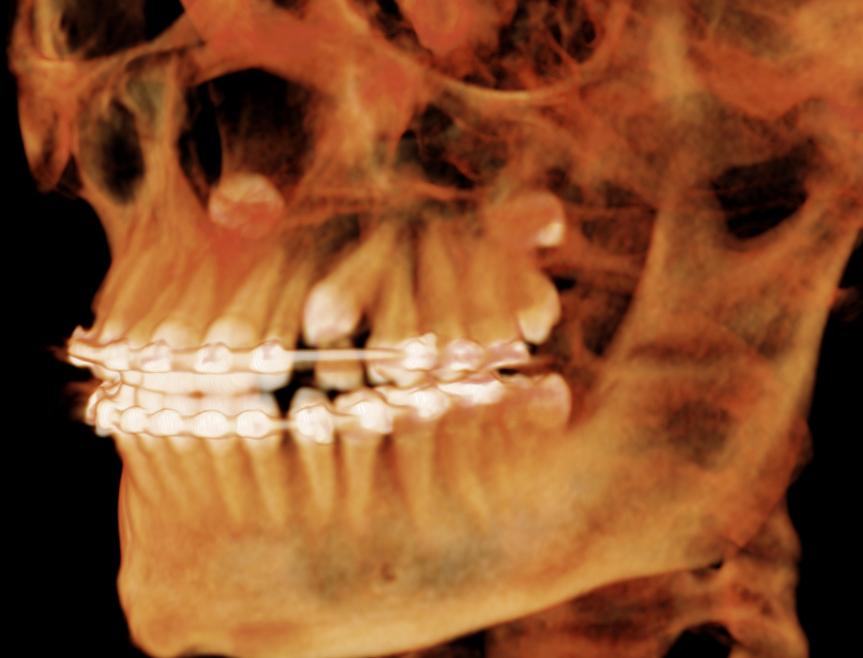 Impacted Tooth Exposure